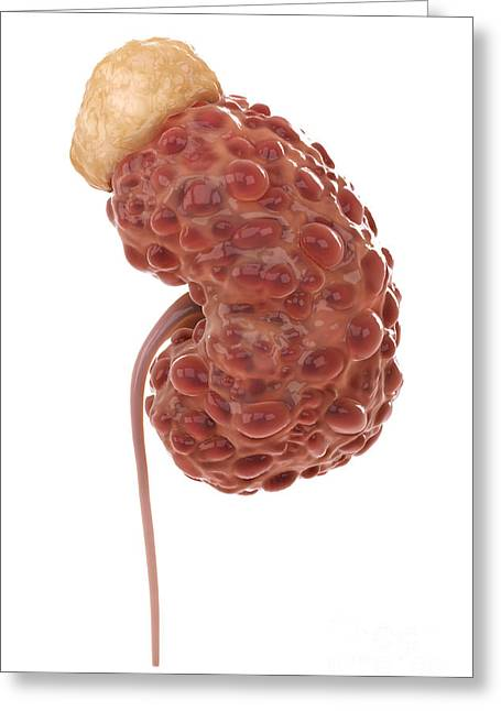 Problem Greeting Cards - Polycystic Kidney Greeting Card by Science Picture Co