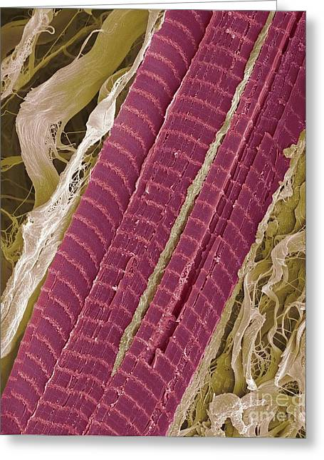 Lumbrical Greeting Cards - Primate Finger Muscle, Sem Greeting Card by Steve Gschmeissner