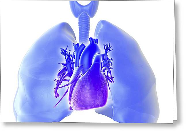 Weak Disorder Greeting Cards - Pulmonary hypertension, artwork Greeting Card by Science Photo Library