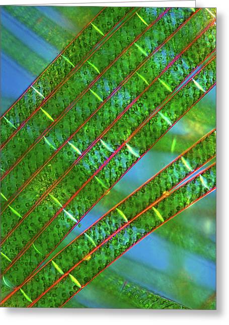Spirogyra Algae Greeting Card by Marek Mis