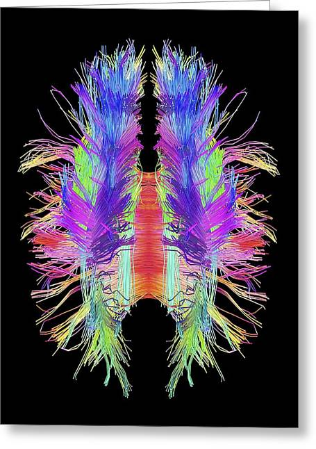 Humans Greeting Cards - White matter fibres and brain, artwork Greeting Card by Science Photo Library