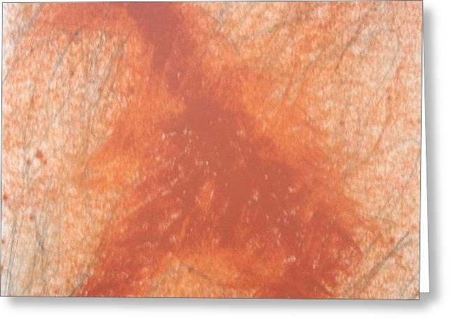 Gerhard Beck Greeting Cards - Ohne Greeting Card by Gerhard Beck