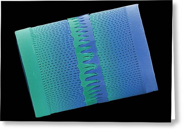 Diatom Greeting Card by Steve Gschmeissner