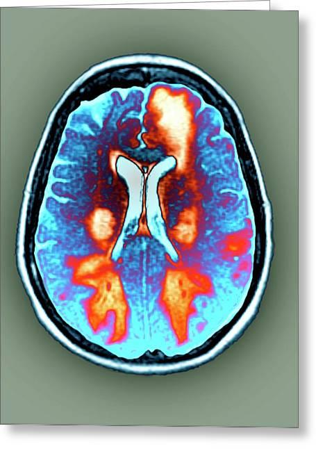 Brain In Toxic Encephalopathy Greeting Card by Zephyr