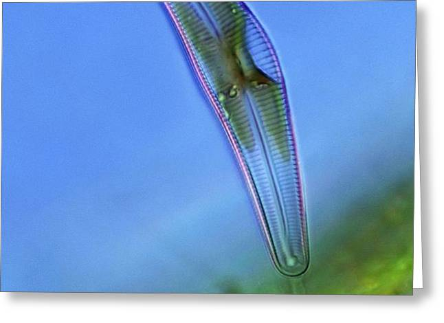Diatom, light micrograph Greeting Card by Science Photo Library