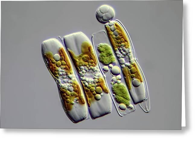 Diatoms Greeting Card by Frank Fox