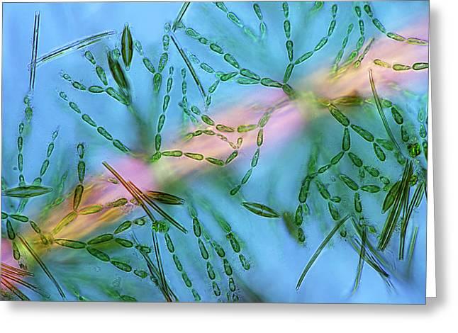 Diatoms On Red Algae Greeting Card by Marek Mis