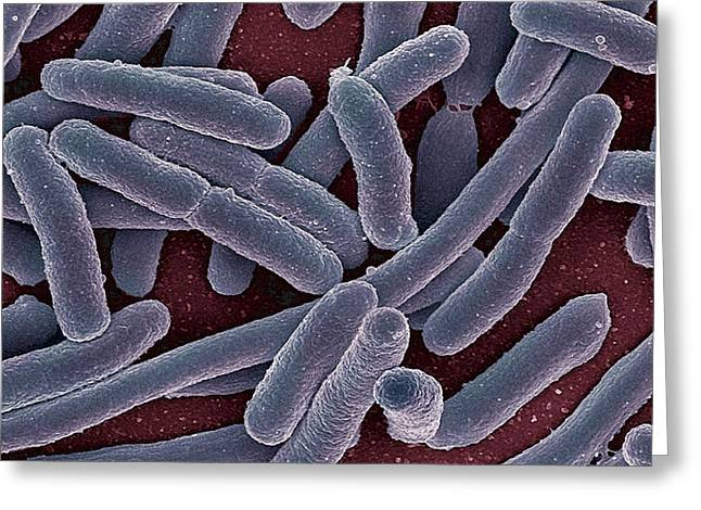 Gram-negative Greeting Cards - E Coli Bacteria SEM Greeting Card by Ami Images
