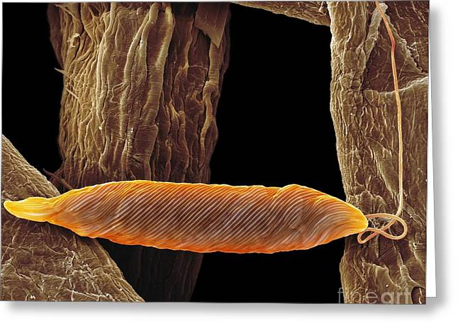Single-celled Greeting Cards - Euglena Flagellate Protozoan, Sem Greeting Card by Steve Gschmeissner