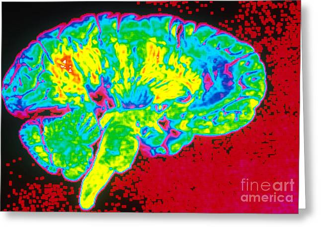 Color Enhanced Greeting Cards - Human Brain Greeting Card by Scott Camazine