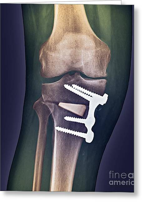 Knee-high Greeting Cards - Knee Realignment Surgery, X-ray Greeting Card by Zephyr