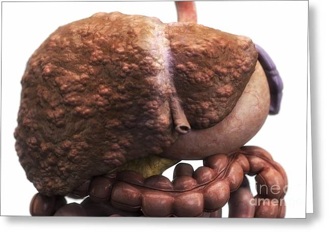 Abdominals Greeting Cards - Liver Cirrhosis Greeting Card by Science Picture Co