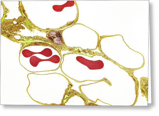 Carbon Dioxide Greeting Cards - Lung Alveoli And Red Blood Cells, Tem Greeting Card by Thomas Deerinck, NCMIR