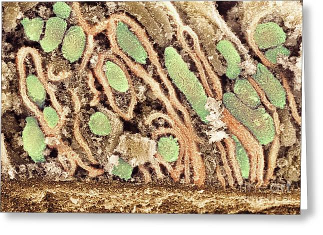 Mitochondrion Greeting Cards - Mitochondria, Sem Greeting Card by Dr. David Furness, Keele University