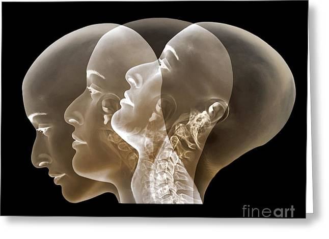 Looking Out Side Greeting Cards - Normal Neck, X-rays Greeting Card by Zephyr