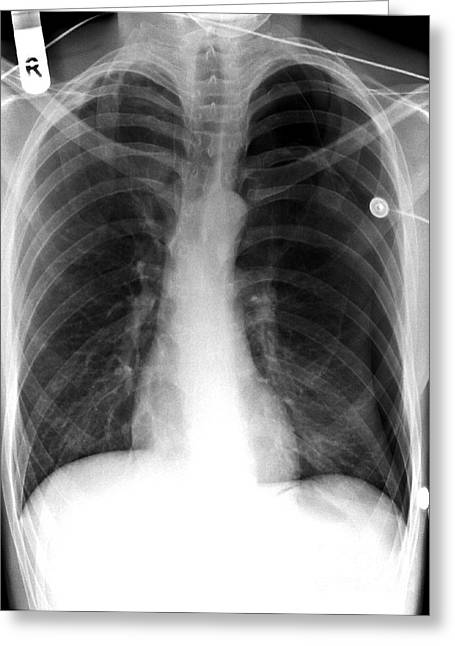 Chest Greeting Cards - Pneumothorax, X-ray Greeting Card by Du Cane Medical Imaging Ltd.