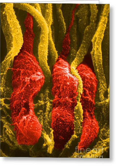 Sem Greeting Cards - Rods And Cones, Sem Greeting Card by Ralph C. Eagle, Jr.