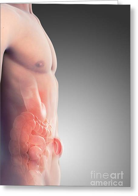 Hernia Greeting Cards - Ventral Hernia Greeting Card by Science Picture Co