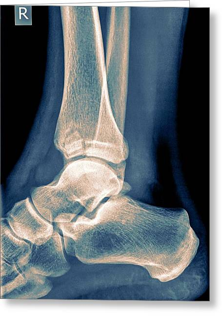 Ankle X-ray Greeting Card by Photostock-israel