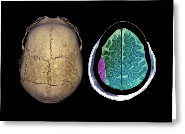 Brain Haemorrhage Greeting Card by Zephyr