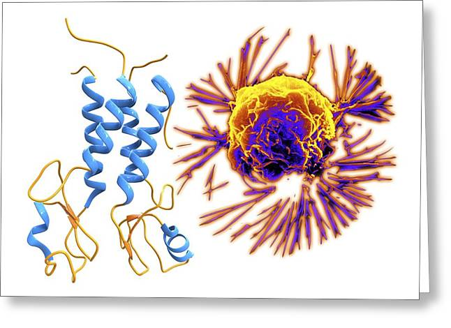 Ovarian Cancer Greeting Cards - Breast cancer protein and cancer cell Greeting Card by Science Photo Library