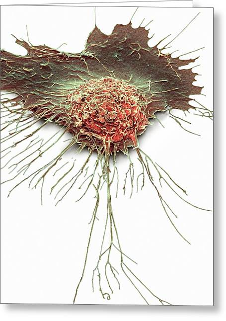 Bronchial Epithelium Greeting Card by Steve Gschmeissner