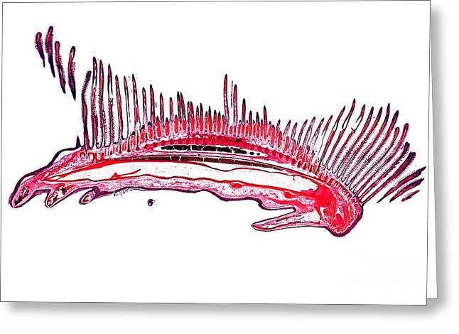 Dogfish Greeting Cards - Dogfish Gill, Light Micrograph Greeting Card by Dr. Keith Wheeler