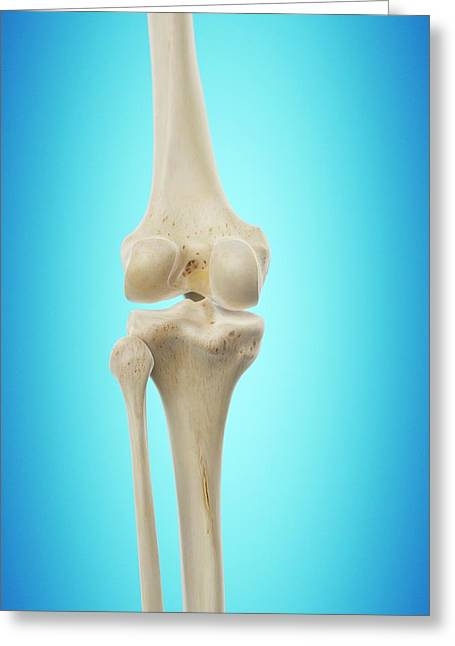 Human Knee Joint Greeting Card by Sciepro