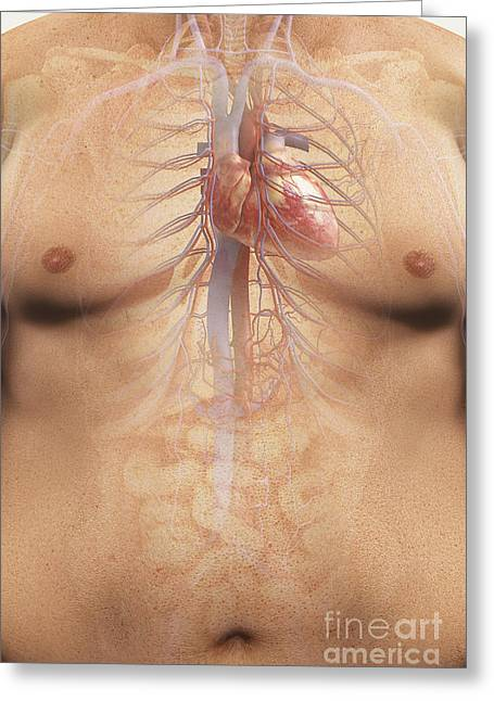 Inferior Vena Cava Greeting Cards - Obesity Greeting Card by Science Picture Co