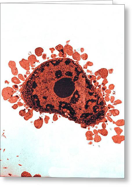 Color Enhanced Greeting Cards - Apoptosis, Human Lymphocyte, Tem Greeting Card by David M. Phillips