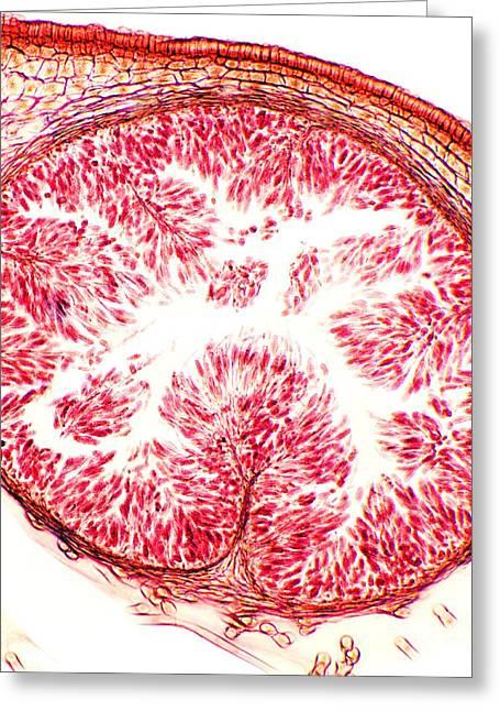 Alga Greeting Cards - Bladder Wrack, Light Micrograph Greeting Card by Dr. Keith Wheeler