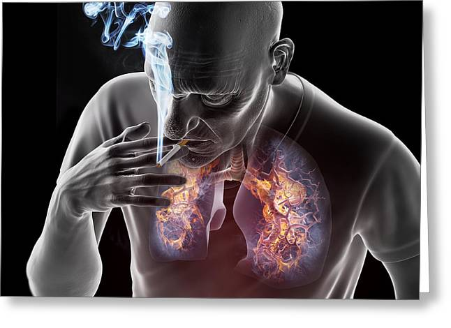 Illuminate Greeting Cards - Dangers Of Smoking Greeting Card by Science Picture Co