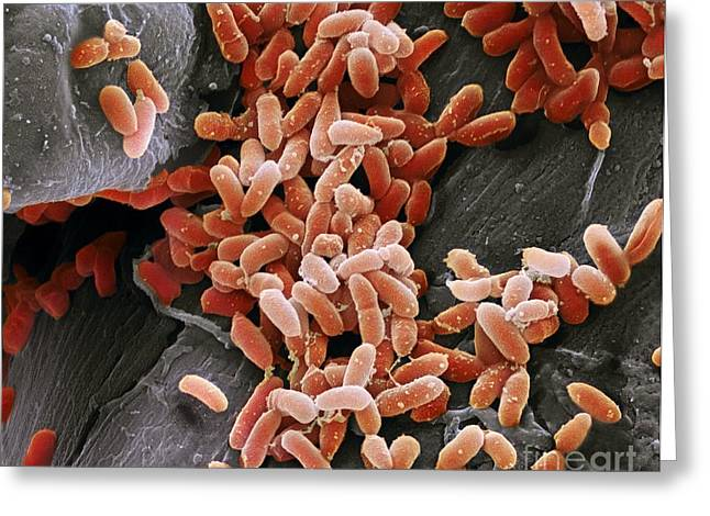 Aquired Greeting Cards - Pseudomonas Aeruginosa Bacteria, Sem Greeting Card by Steve Gschmeissner