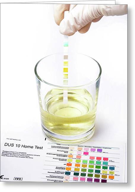 Urine Home Test Kit Greeting Card by Cordelia Molloy