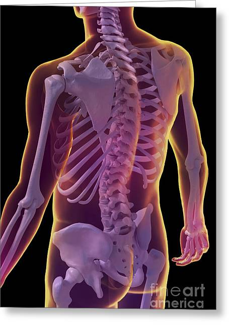 Vertebra Greeting Cards - Bones Of The Upper Body Greeting Card by Science Picture Co