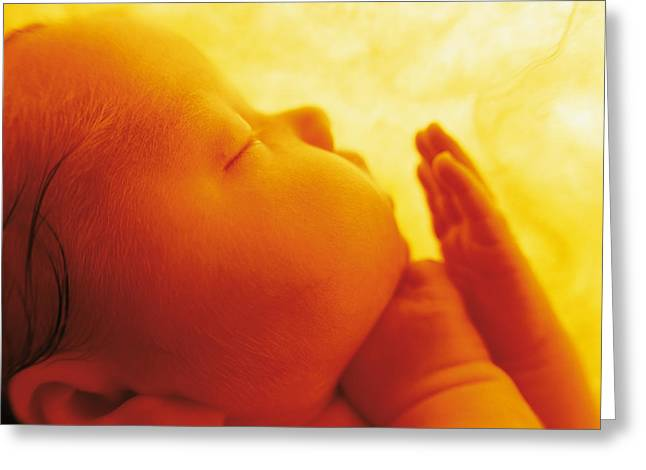 Pure Greeting Cards - Untitled Greeting Card by Anne Geddes