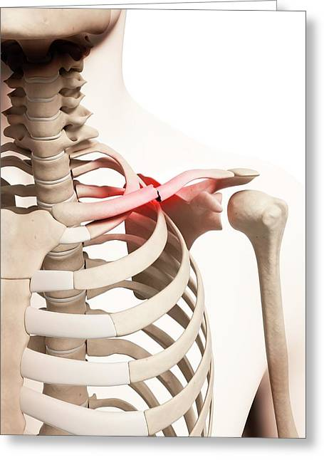 Broken Collar Bone Greeting Card by Sebastian Kaulitzki