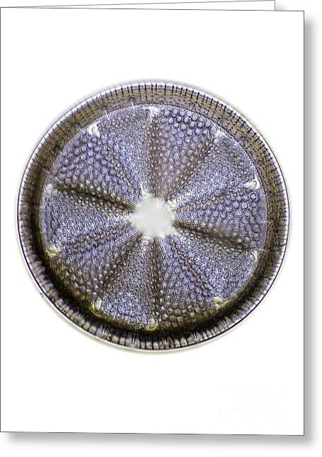 Striae Greeting Cards - Fossil Diatom, Light Micrograph Greeting Card by Frank Fox