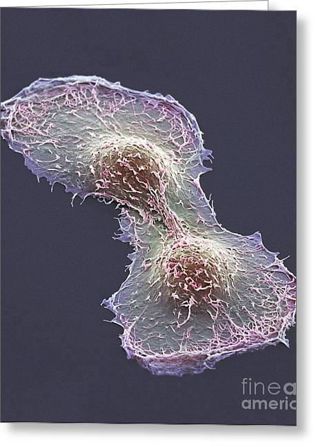 Division Greeting Cards - Hela Cell Division, Sem Greeting Card by Thomas Deerinck, NCMIR