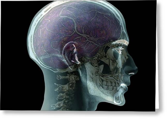 Human Head Greeting Card by Zephyr