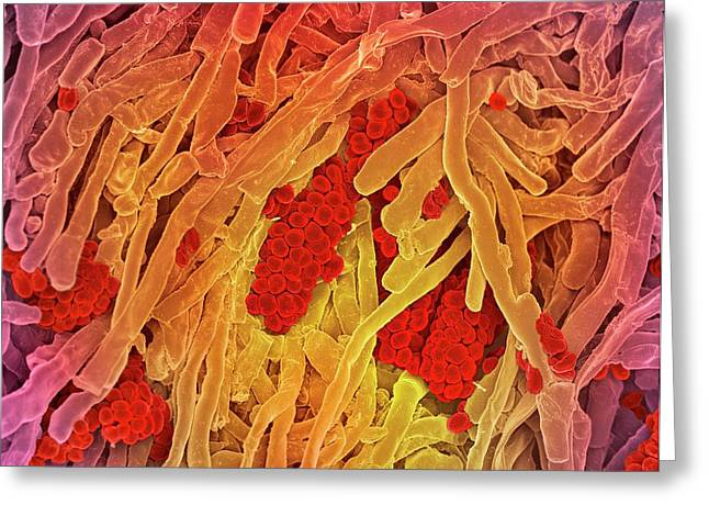 Streptomyces Coelicoflavus Bacteria Greeting Card by Science Photo Library