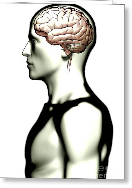 Human Brain Greeting Cards - Human Brain Greeting Card by Science Picture Co