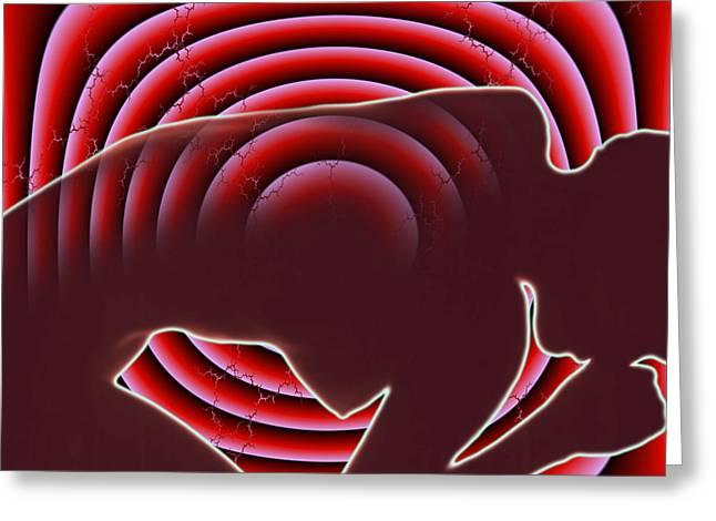 Problem Greeting Cards - Back Pain Greeting Card by Dennis Potokar