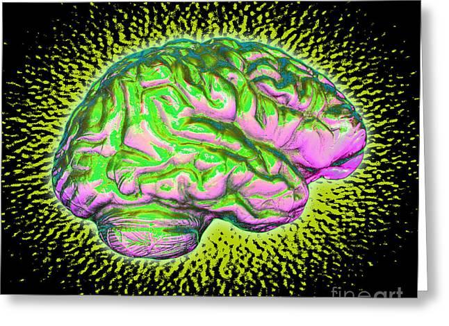 Fluorescent Yellow Greeting Cards - Brain Greeting Card by Dennis D. Potokar