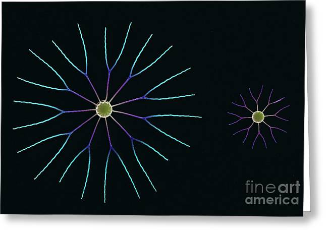 Algae Greeting Cards - Diatom Algae, Sem Greeting Card by Steve Gschmeissner