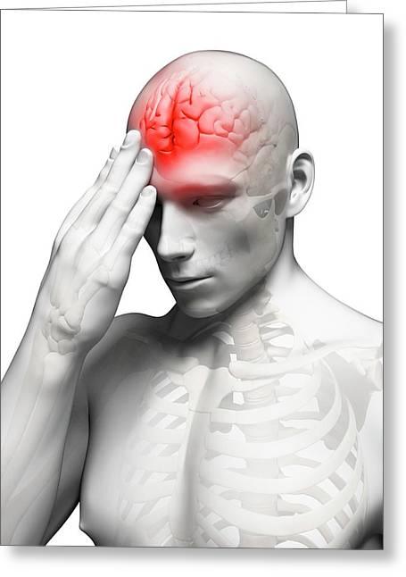 Headache Greeting Card by Sebastian Kaulitzki