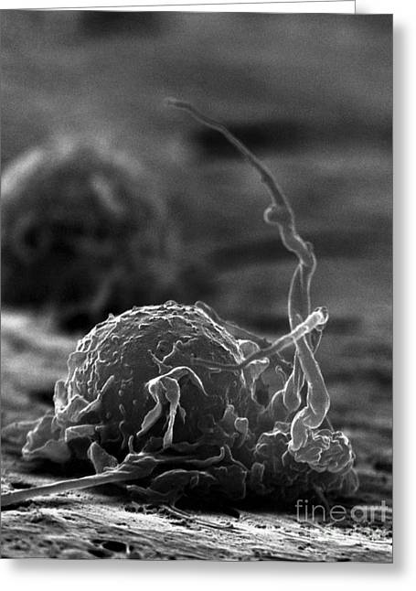 Macrophage Greeting Cards - Human Macrophage Greeting Card by David M. Phillips