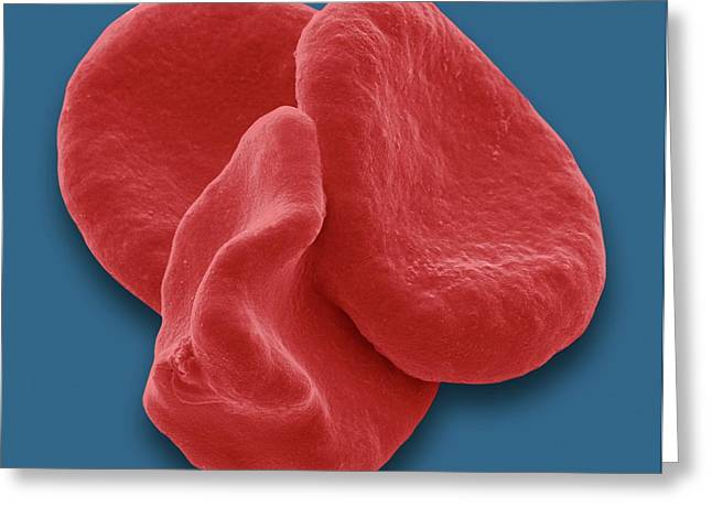 Red Blood Cells Greeting Card by Steve Gschmeissner