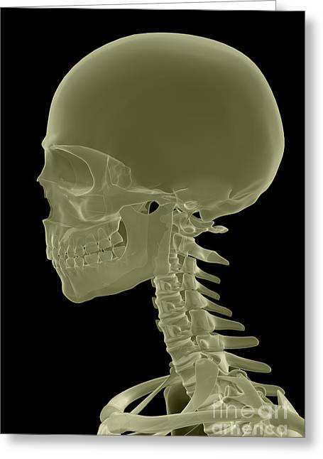 Frontal Bones Greeting Cards - Bones Of The Head And Neck Greeting Card by Science Picture Co