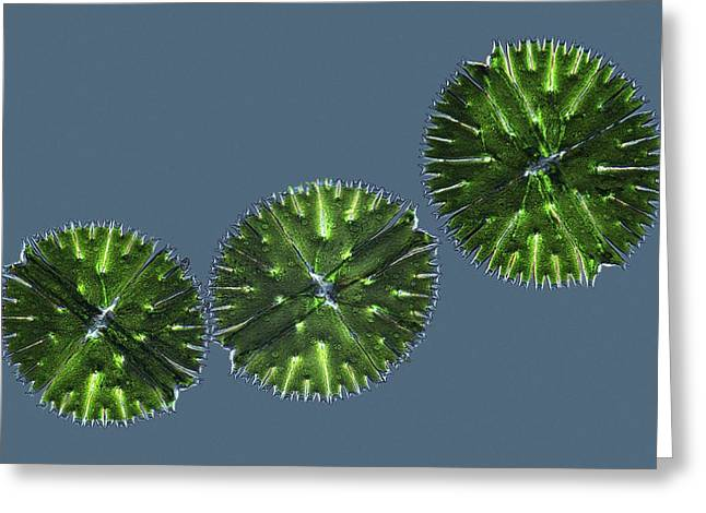 Micrasterias desmids, light micrograph Greeting Card by Science Photo Library